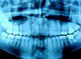 Dental_x-ray-f3417.jpg